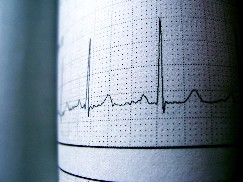 Électrocardiogramme représentant un rythme sinusal.
